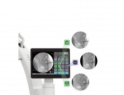 Techview buttons